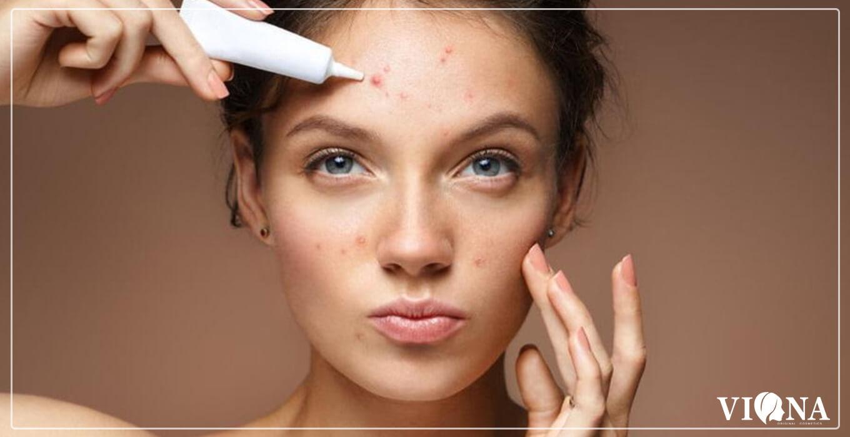 عوارض مصرف لوازم آرایشی تقلبی