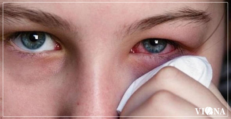 عوارض مصرف لوازم آرایشی تقلبی - عفونت چشم ها